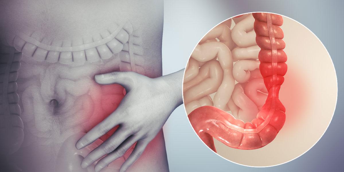 poate sindromul intestinului iritabil pentru pierderea în greutate